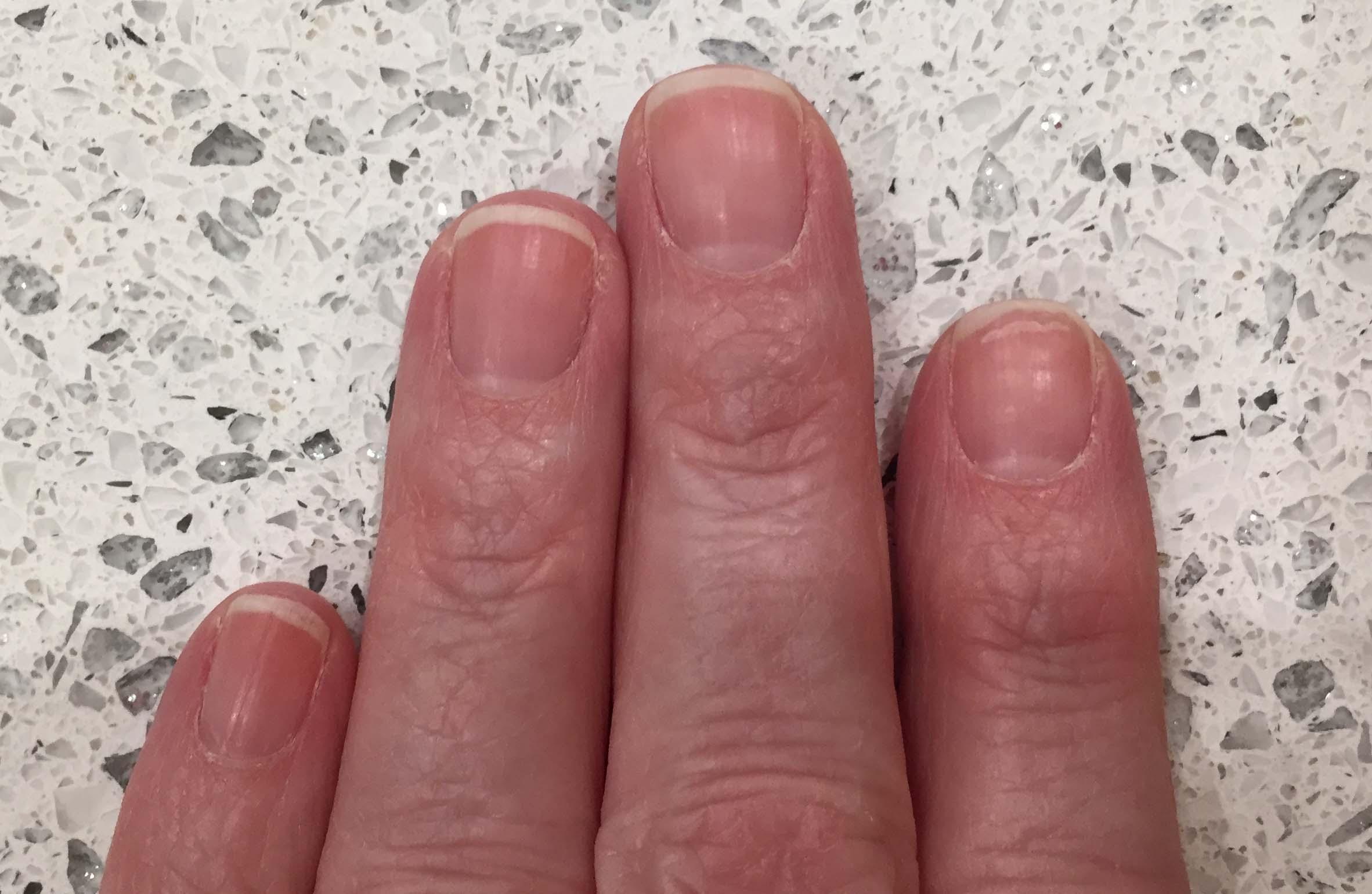 Nail Care Tips and Tricks   Appalachian Spring Dermatology
